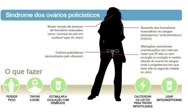 A síndrome de ovários policísticos (sop)