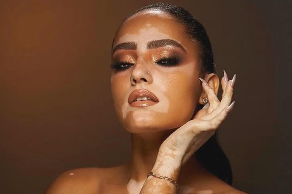 modelo-vitiligo-ff-imagem-frame-3362107-1092186