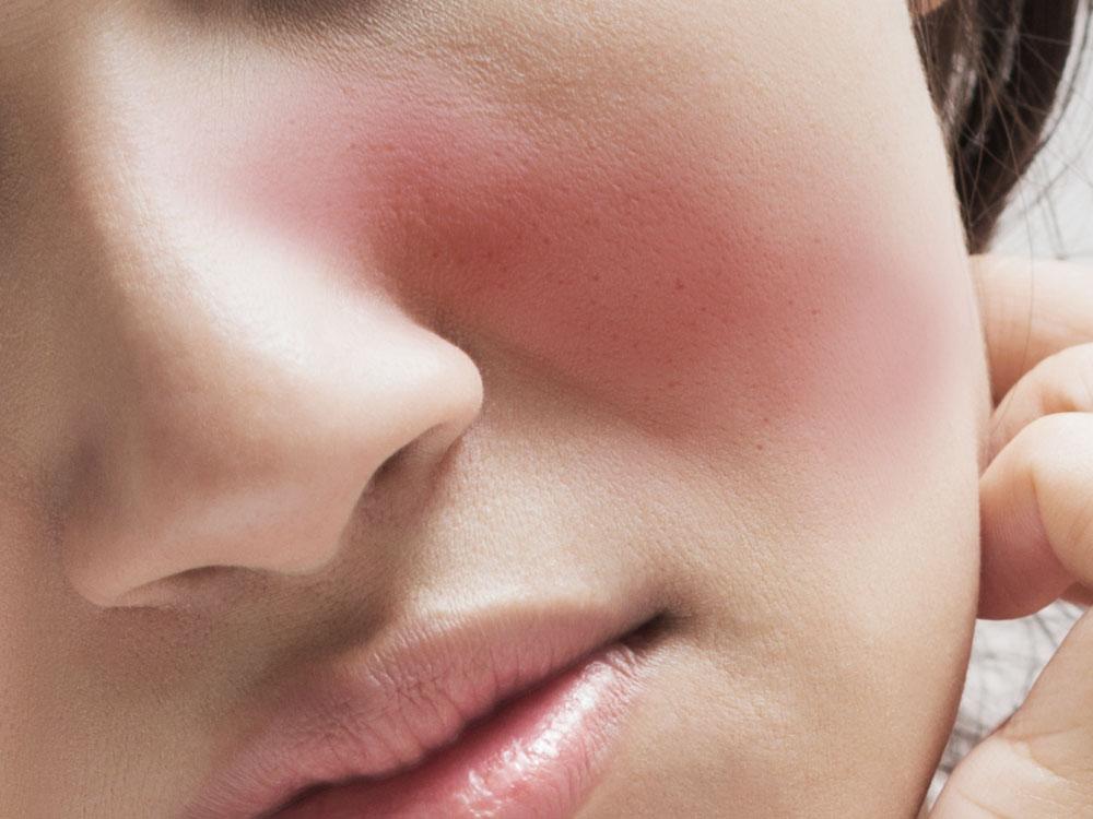 Lúpus- causas e sintomas