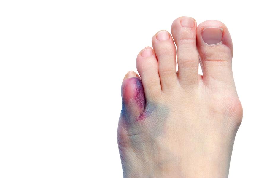 9 doenças que são muito comuns nos pés