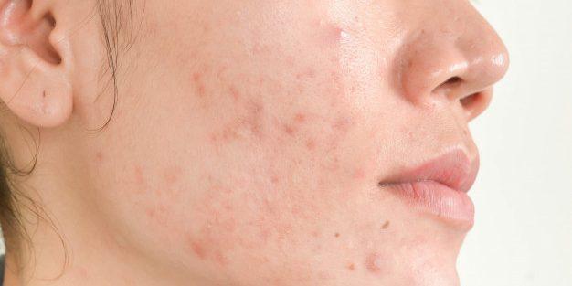 Principais tratamentos para acne