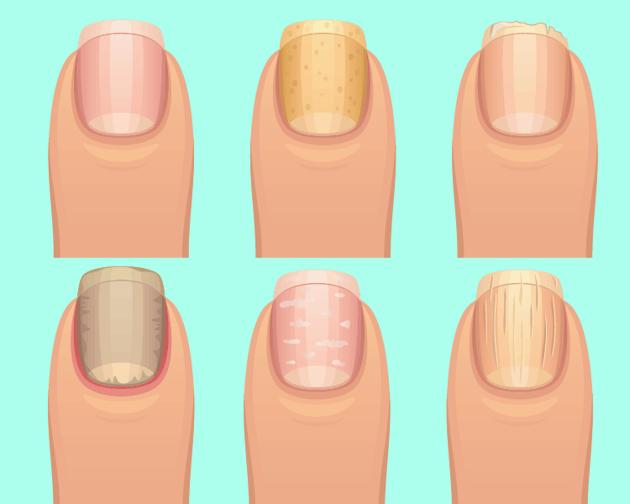 As unhas podem mostrar como está a sua saúde
