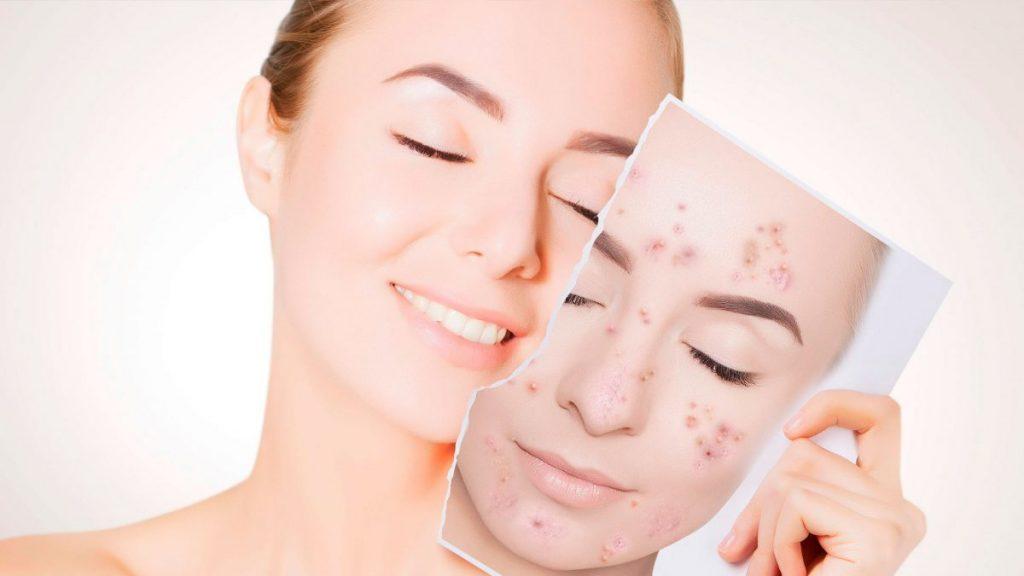 Acne – os principais tratamentos