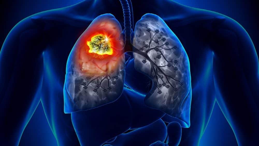 Câncer de pulmão – causas e sintomas