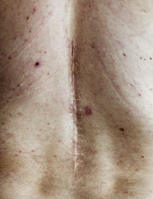 Tipos de manchas na pele – tratamentos e prevenções – 4 mais recorrentes no brasil
